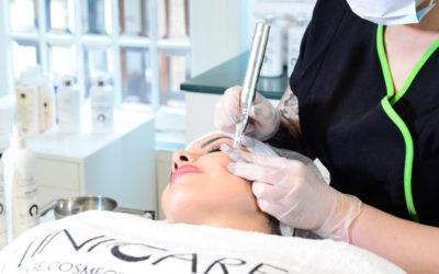 Microneedling på Stockholms Beauty Center