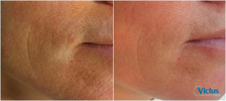 pore treatment