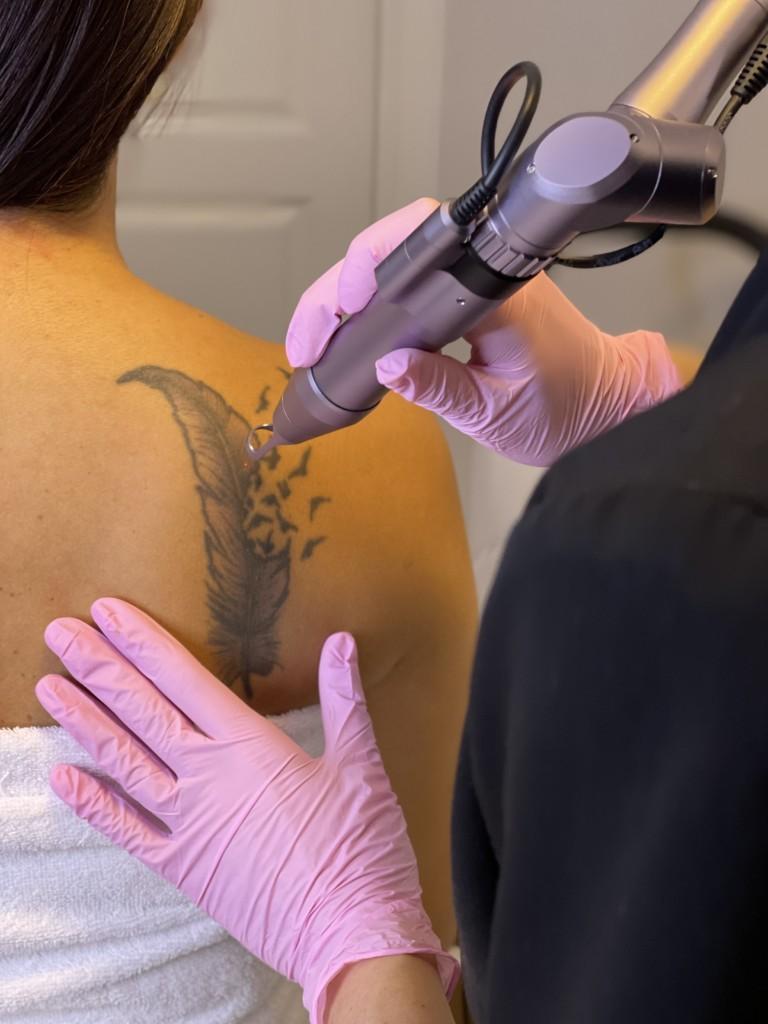 Pico Laser tatueringsborttagning